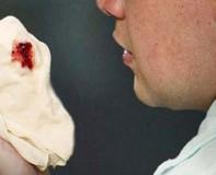 Những dấu hiệu cảnh báo về bệnh ung thư phổi