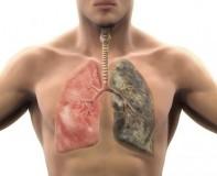 Viêm phổi có lây không và nguy hiểm không làm sao để tránh