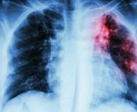Giải đáp thắc mắc về bệnh lao phổi có lây nguy hiểm và chữa được không